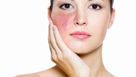 rosacea, delifab, antiossidante, protezione solare